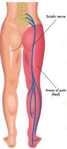 Image showing sciatic nerve pain regions in sciatica