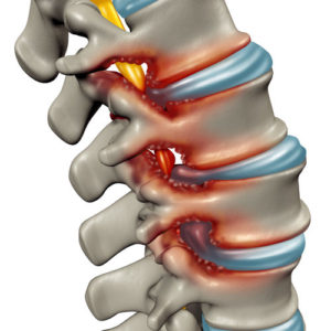 Spinal stenosis can cause back and leg pain when walking