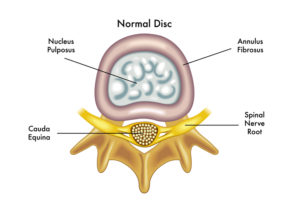 Picture of a normal disc to support information about bulging disc recovery time
