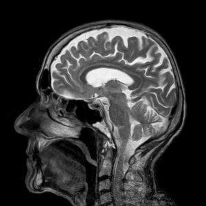Picture to show the type of image gained from an MRI scan for sciatica. This is an MRI scan of someone's brain