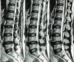 MRI scan for sciatica to show cauda equina syndrome