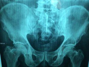 sciatica symptoms in hip could be hip osteoarthritis